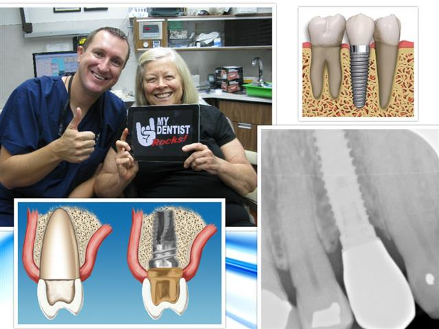 Dental Implants are the best way to replace missing teeth. Dr. Michael Nugent is a leader in dental implant technology.