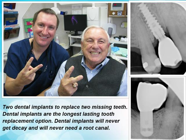 Dental Implants restore missing teeth and are the best way to replace teeth.