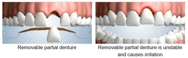 Partial Denture or Dental Implant