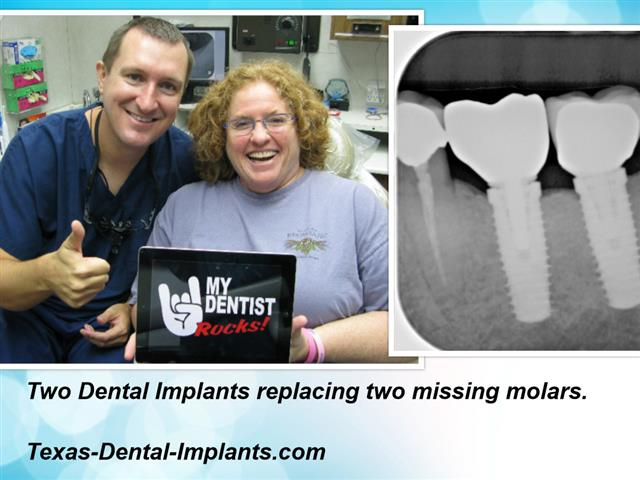 Dental Implants in Pasadena, Texas