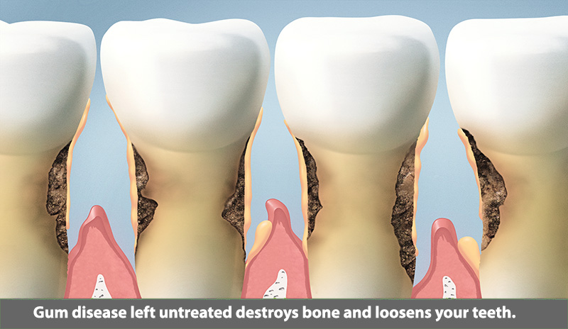 Gum Disease after Tooth Loss