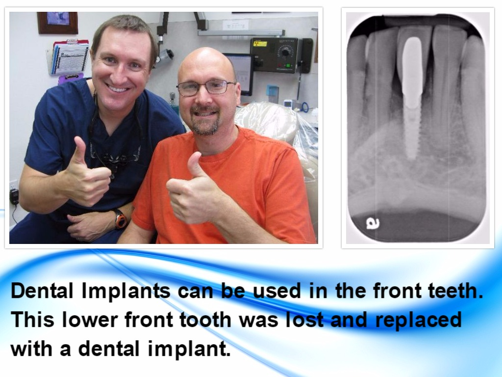 Deer Park Texas Dentist Dr. Nugent utilizes dental implants to replace missing teeth.
