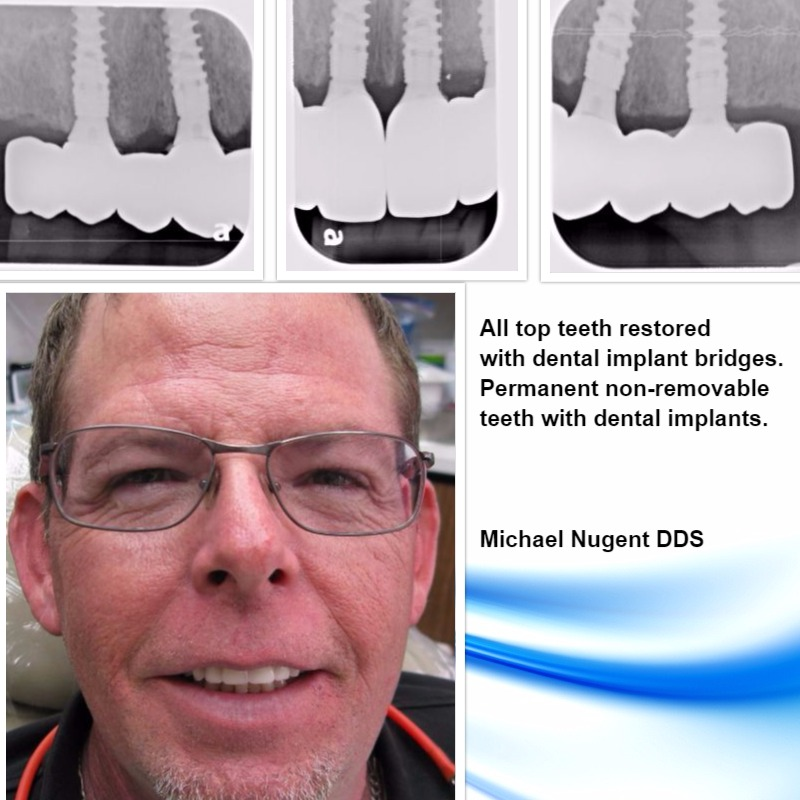 Dental Implant Bridges for the entire mouth.