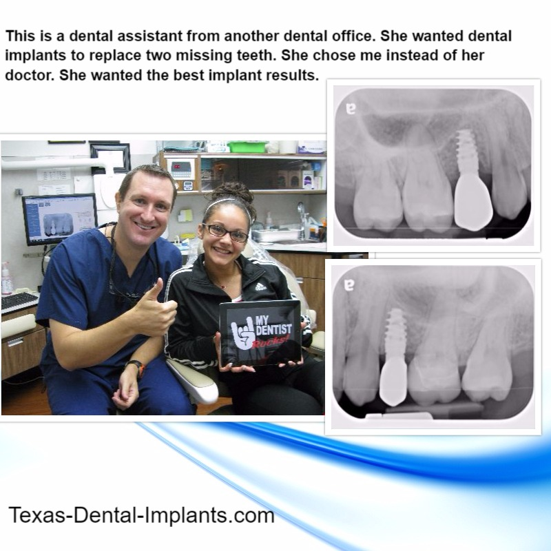 Teeth Implants by Pasadena, Texas Dentist Dr. Michael Nugent