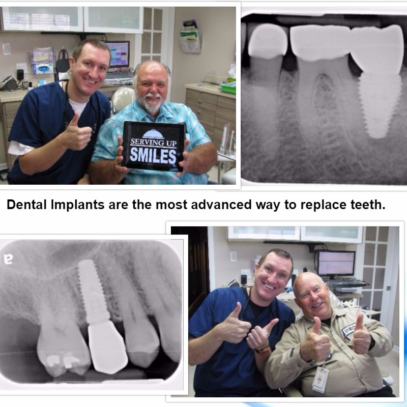 Pasadena Texas Dental Implant Dentist Dr. Nugent is a leader in dental implant treatment.