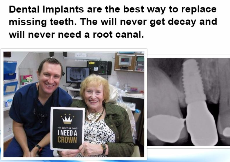 Dental Implants never get decay