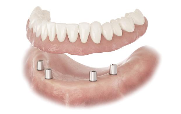 Conus Denture