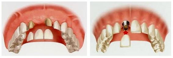 Dental Implants or Dental Bridge